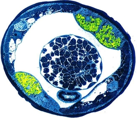 Cross section filarial nematode wolbachia in green