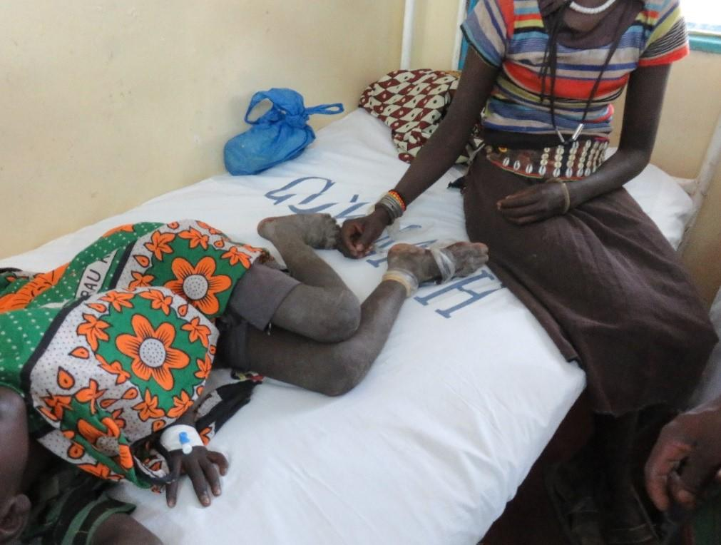 It took this mother 14 hours to get her child, who was bitten by a snake, to hospital in Baringo, Kenya to receive antivenom. The amount of time required for a snakebite victim to reach a medical centre to receive treatment remains a major issue in rural African communities. Photo taken by Prof. Rob Harrison.